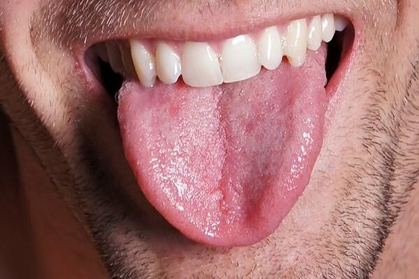 دیه زبان، لب و چشایی
